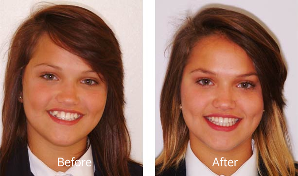 Invisible braces Nottingham, adult orthodontics Nottingham, NHS braces Nottingham