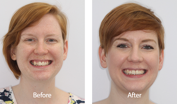 All about Adult Braces Before And After