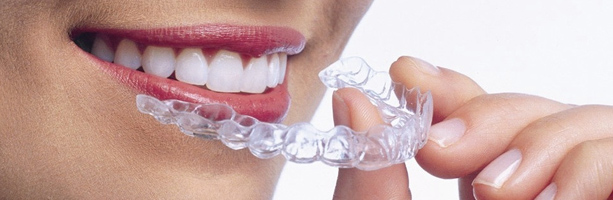 Clear braces Nottingham, Invisalign braces Nottingham, Removable Braces & Invisible Braces Nottingham